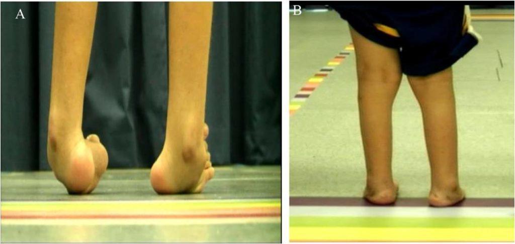 Pediatric surgery foot